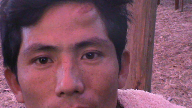 A Public hearing held by Suppressing the Public:  The Injury Mark from the Lathi charge is Clear on his Forehead