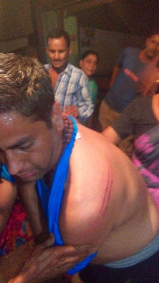 Sameer Raturi beaten by police