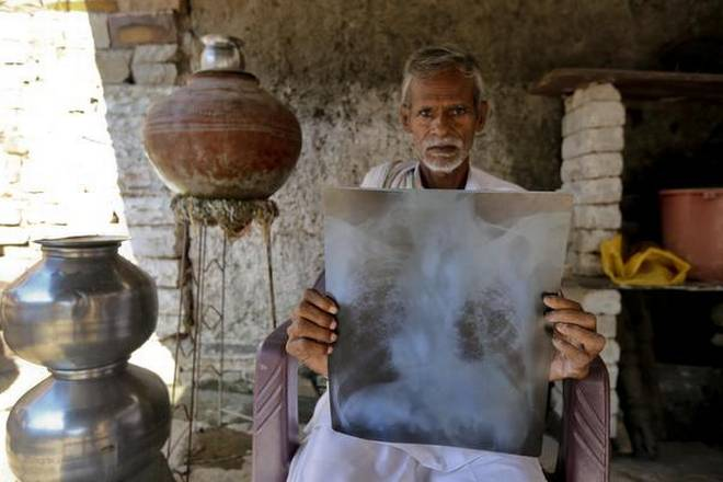 Khemchand Yadav, mine worker and silicosis patient from the village of Dabi in Bundi, Rajasthan Photo Credit, Ashish V